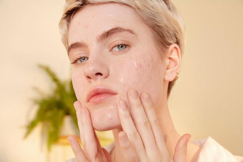 Frau verwendet beruhigendes Gel für ihr Gesicht