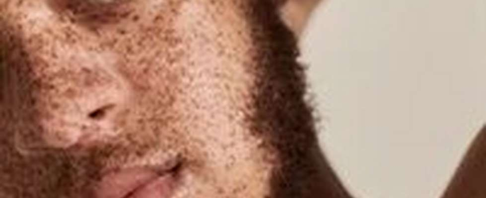 CLOSE UP OF MAN WITH FRECKLES DULL SKIN